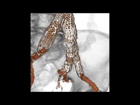 La varicosité sur les oeufs sur la photo