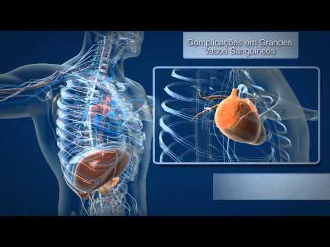 Vitaprost e la differenza prostatilen