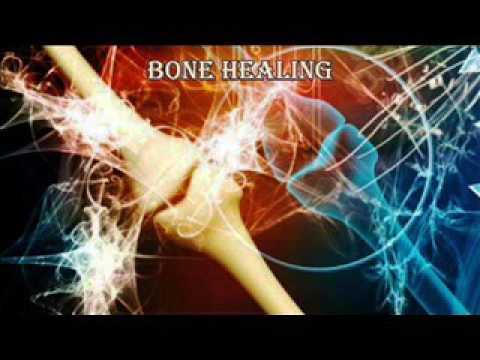 Chondroide Kniegelenks Körper