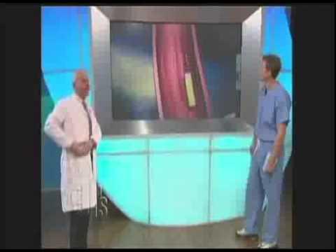 Ursachen der Hypertonie. Behandlung