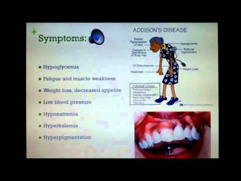 Video Addison disease