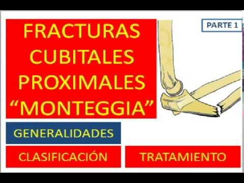 Remedii pentru recenzii ale ligamentelor și articulațiilor