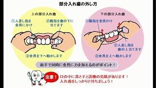 部分入れ歯の着脱法