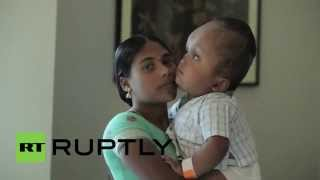 "India: Meet ""miracle"" baby Roona, survivor of the impossible operation"