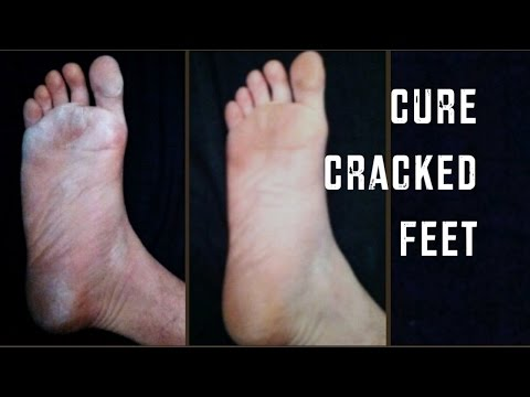Video How to Cure Dry, Cracked Feet | Cheap Tip #165