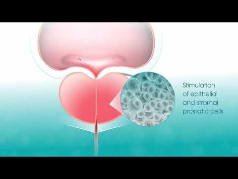 A prostatitis chaga kezelése