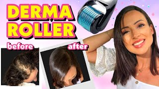 DIY TREATMENT DERMA ROLLER FOR HAIR LOSS + MIRACLE SECRET CURE!