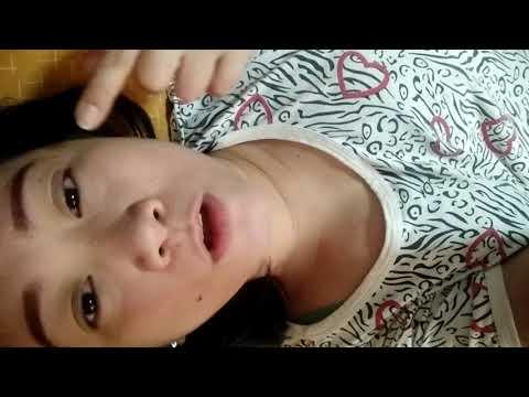 Balat halamang-singaw sa kanyang mga kamay kaysa sa pagalingin