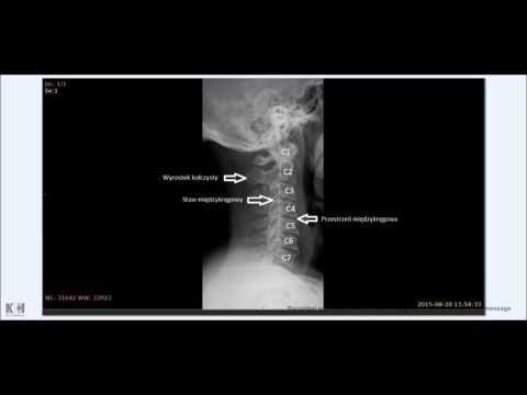 Leczenie chorób kręgosłupa szyjnego
