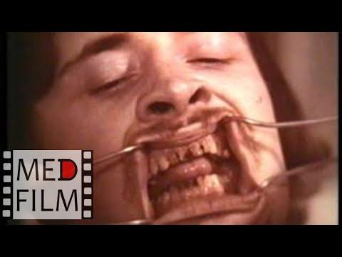 Остеомиелит нижней челюсти. Профилактика перед операцией © Osteomyelitis the lower jaw