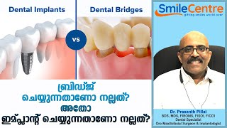 Is it better to bridge or to implant? - Video