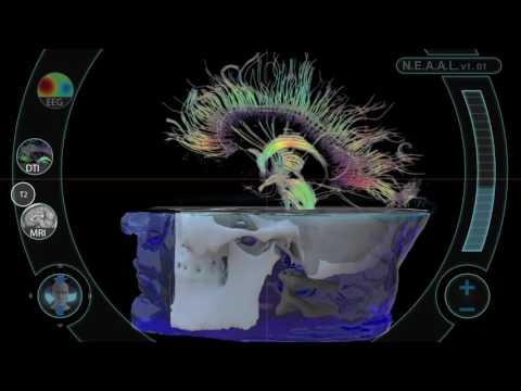 Multimodal Brain Imaging Interface (Use Case Example 1)