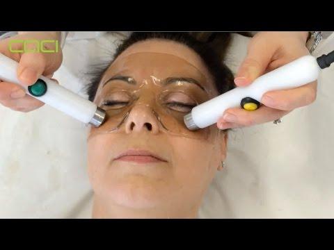Boteks wrinkles sa paligid ng mga mata review