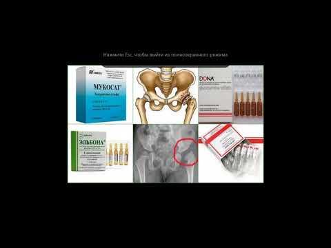 Umflarea durerii în articulația cotului