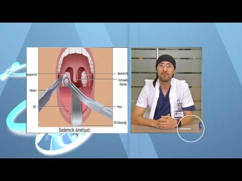 Bademcik İltihaplanması Belirtileri ve Tedavisi. Bademcik Ameliyatı Nasıl Yapılır?