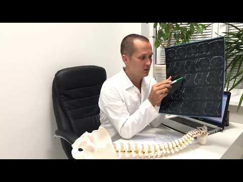 Упражнения для выравнивание шейного позвоночника