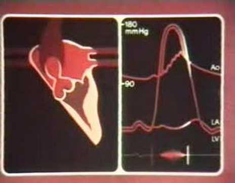 Niedriger Blutdruck Herz, was zu tun