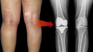 How to Treat a Baker's Cyst Behind the Knee || Top 5 Home Remedies for Bakers Cyst Behind the Knee