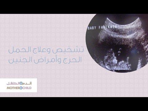 تشخيص وعلاج الحمل الحرج و أمراض الجنين