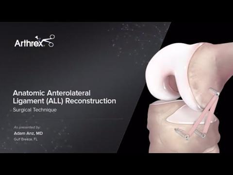 Tratament pentru artrita articulației umărului