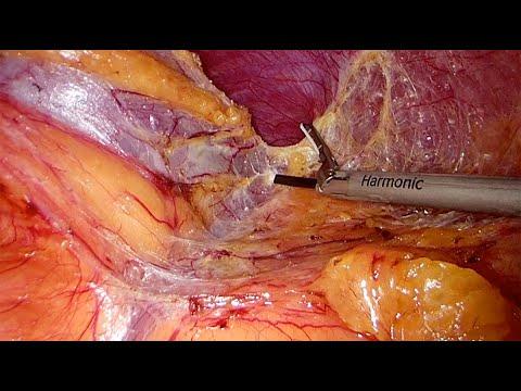 Laparoskopowa przezotrzewnowa adrenalektomia lewostronna z powodu przerzutu niedrobnokomórkowego raka płuca (NSCLC)