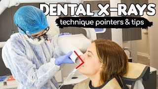 How To Take PERFECT Dental X-rays | Tips & Tricks From A Dental Hygienist