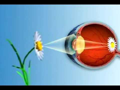 Myopia és hyperopia cikk