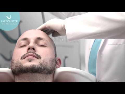 Lultimo linvenzione da una perdita di capelli