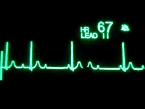 Plućne hipertenzije vježbanje