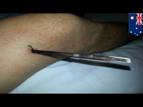 Na nodze poniżej kciuka pojawiła gula