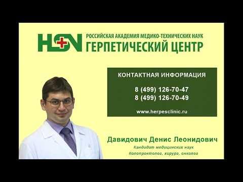Как лечить полипы прямой кишки — Отвечает врач