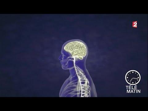 Vestibular papillomatosis surgery