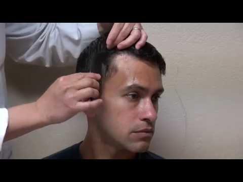 Video Receding Hairline Transplant Restoration FUE Minimal Scar Dr. Diep www.mhtaclinic.com