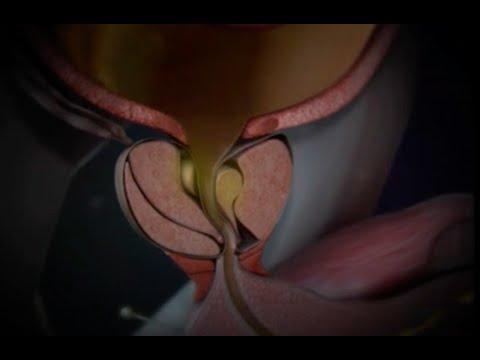 Най-бързо лечение на простатит