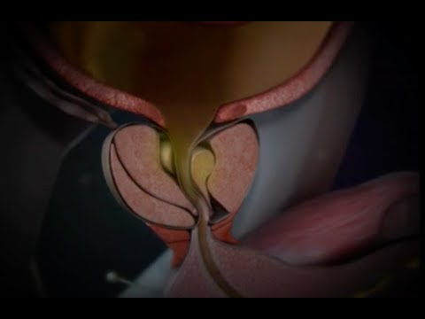 Простатата секс ххх