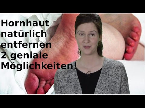 Mandarinen und Bananen in Diabetes