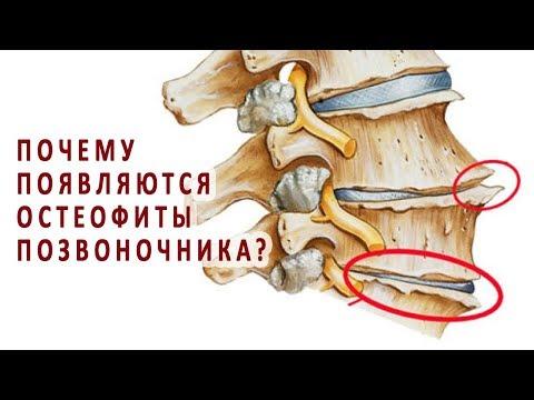 Почему появляются остеофиты позвоночника?