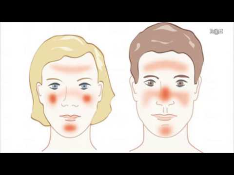 Rosacea Natural Treatment The Best Natural Remedies for Rosacea