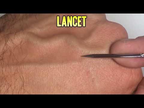 Scalp Cysts, Pimple Popping, Ingrown Hair & Dermatology