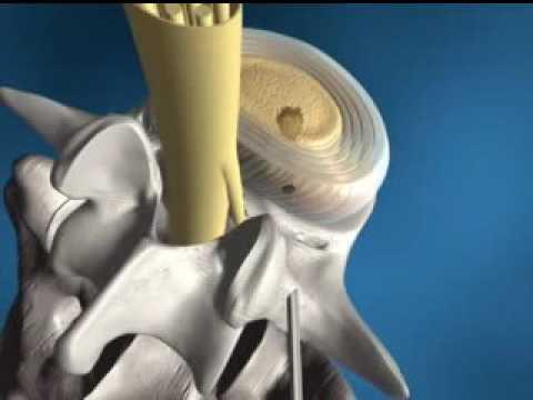 Übungen für Rückentrainingsvideos für Hüfte