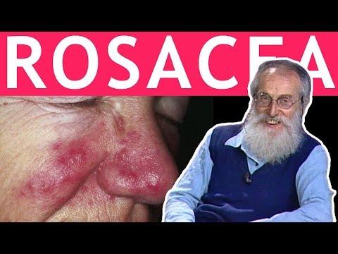 Laspettativa di vita alla prostata cancro del padre di 4 gradi