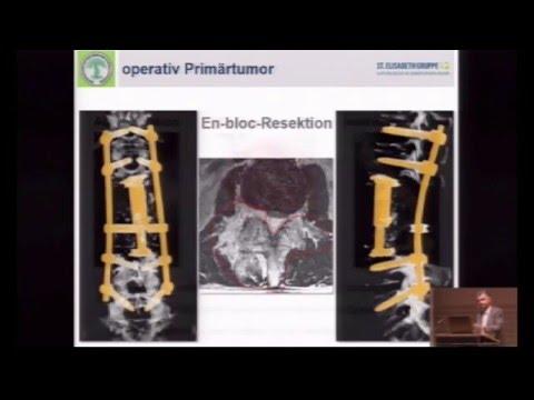 Die Ursache der Schmerzen in den Gelenken nach 45 Jahren
