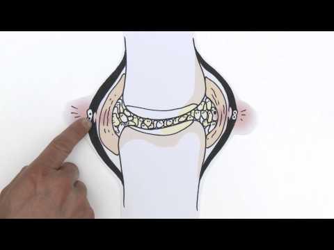 Sia a destra articolazione della gamba