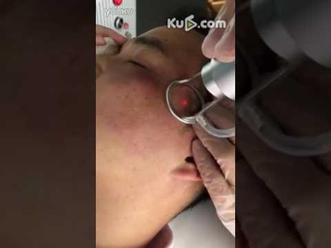 Malumanay whitening facial balat