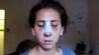 My Rhinoplasty Recovery: #4