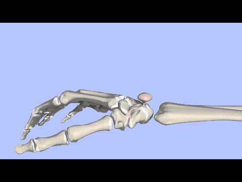 Chinesische Medizin mit Osteoarthritis des Knies
