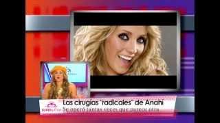 Las narices de las famosas: antes y después de la cirugía - Anahi, Belinda, Shakira y más...
