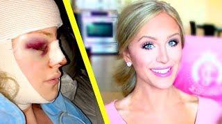 My Facial Plastic Surgery Story   Gigi