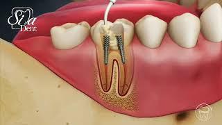 پست و کور دندان | دندانپزشکی سیمادنت