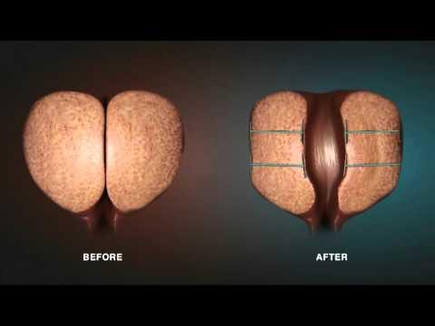 Sea Buckthorn Gyertyák Prostatitis Vélemények